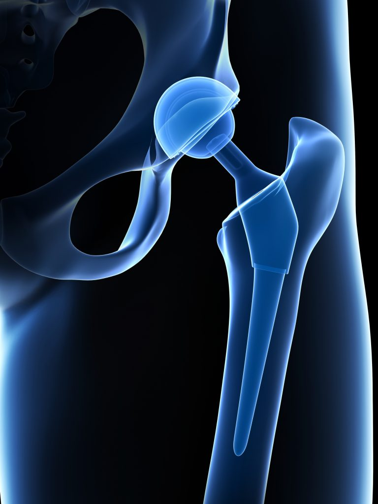 Anterior Approach Total Hip Replacement Surgery Hip