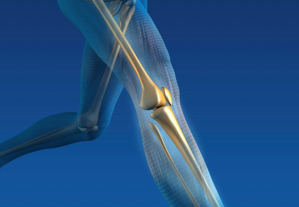 Outpatient-Partial-Knee-Replacement