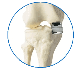 Benefits-of-Outpatient-Partial-Knee-Replacement