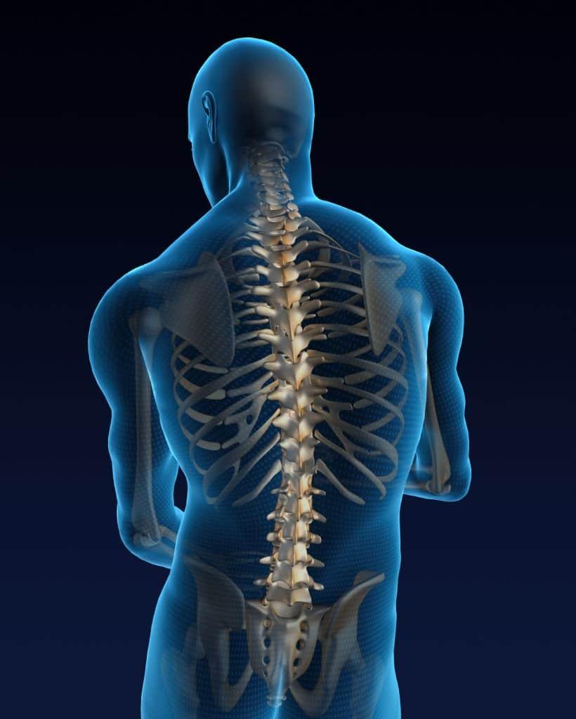 Foraminal Stenosis Spine Diagram - Orlando Orthpaedic Center