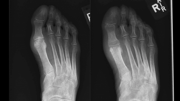 susan foot before after