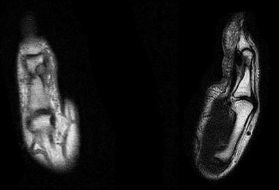 Donna MRI Scans